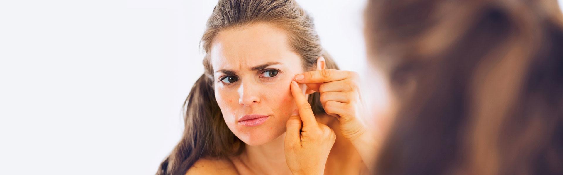 Há muito que a acne deixou de ser um problema exclusivo dos adolescentes