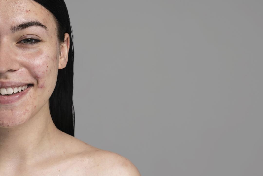 Como evitar as manchas escuras no rosto?